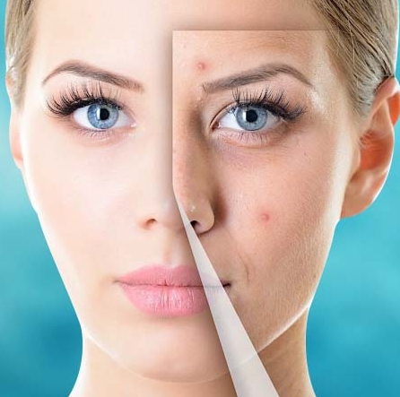 skin care Botox botox injections juvederm voluma electrolysis dermaplane facial facials microneedling laser hair removal waxing anti wrinkle anti-wrinkle laster hanover pa 17331 york pa bare skin care lebo skin care allure LUX medical spa medspa esthetician
